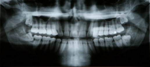 after-impacted-tooth.